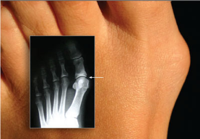 Bunion with X-ray